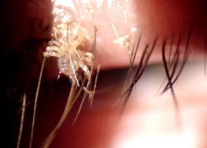 eyelash-lice-1