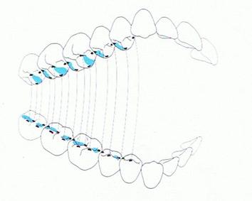 Urbadent. Fabricantes de prótesis dentales como prótesis