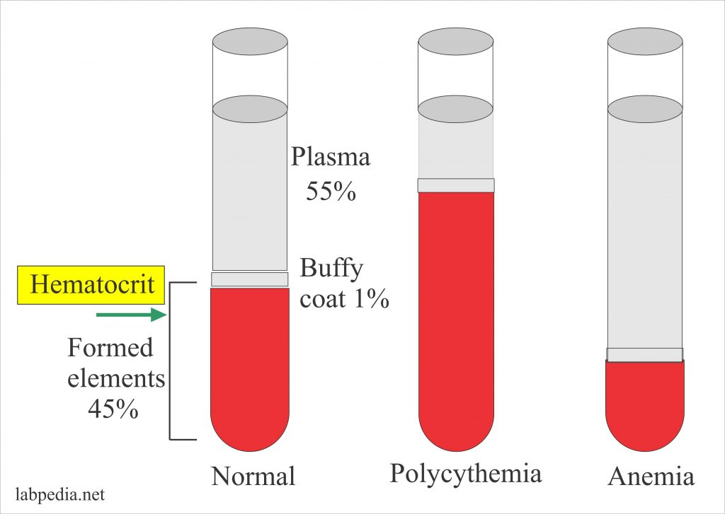 Haemoglobin – Part 5 – Hematocrit (HCT. Hct). Packed Cell Volume (PCV) – Labpedia.net