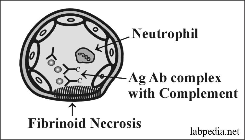 Chapter 13: Hypersensitivity Reaction Type III, Immune