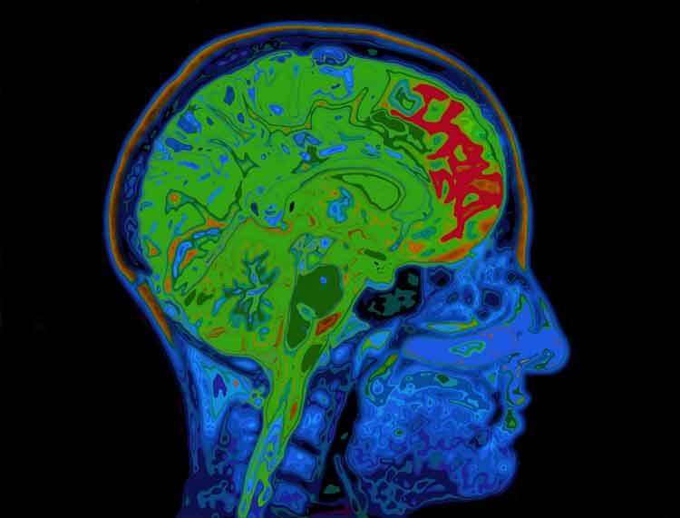 Un dispositivo que lee la mente y transforma los pensamientos en texto