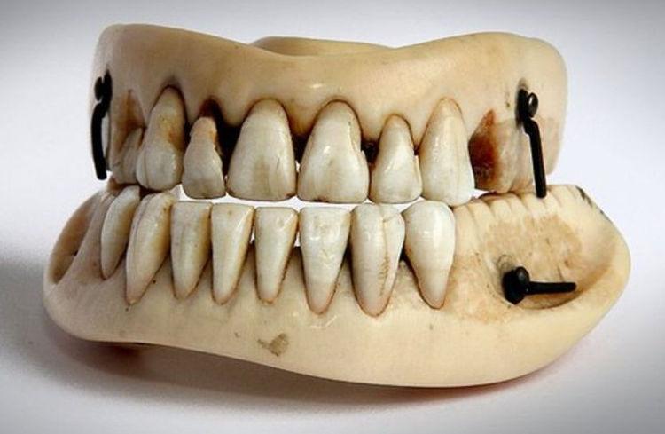Dentadura postiza hecha con dientes de caídos en Waterloo