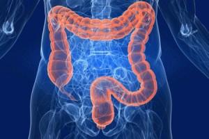 intestino_malattie