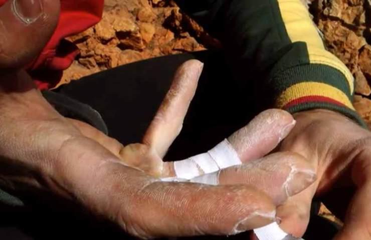 Fingerverletzungen behandeln - Klettern