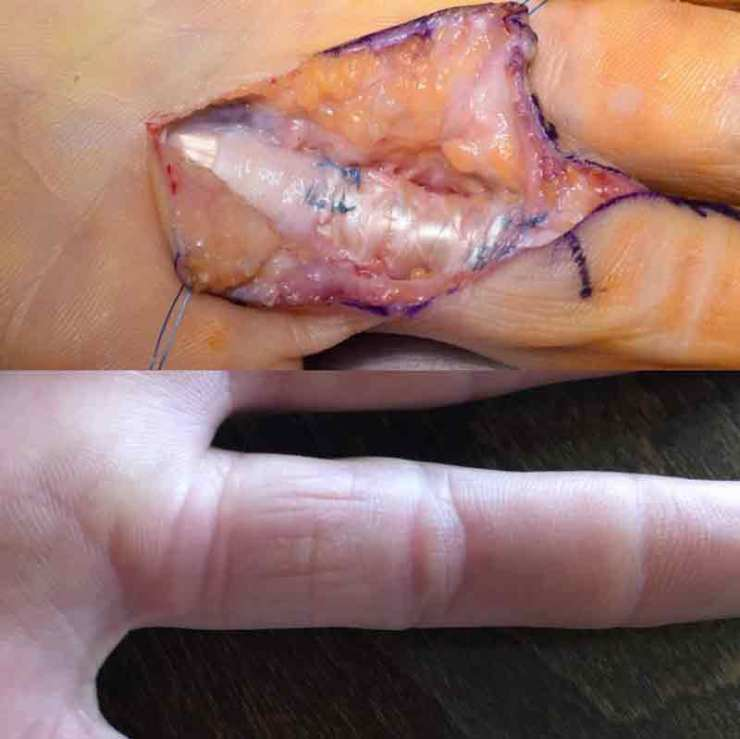 A comparison: the finger of Cédric seven months ago and in February