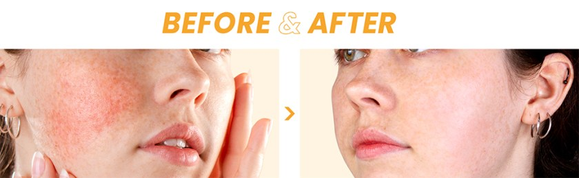 acne, blemish, trouble skin care