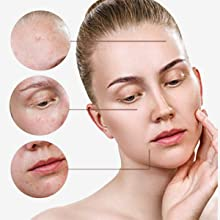 Chloasma Care helps with Blemishes