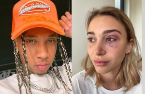 Rapper Tyga arrested on domestic violence charges after ex-girlfriend posts picture of bruised eye