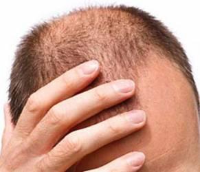Trapianto di capelli, 5 cose che devi sapere prima di farlo