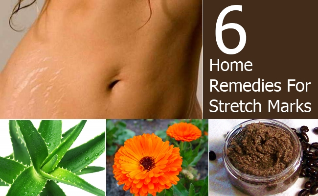 Home Remedies That Can Remove Stretch Marks