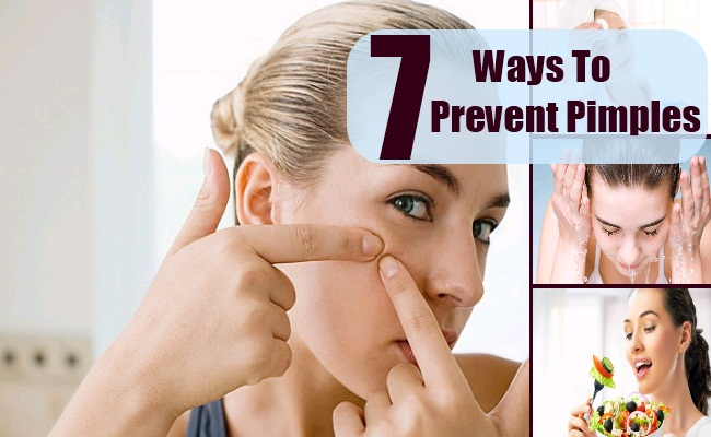 Ways To Prevent Pimples