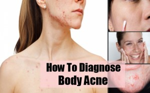 How To Diagnose Body Acne