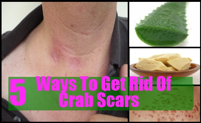 Ways To Get Rid Of Crab Scars