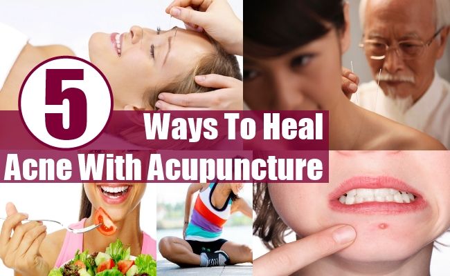 Heal Acne With Acupuncture