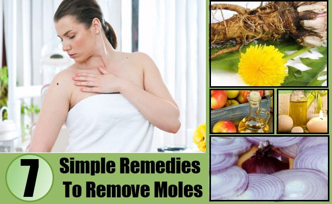 Simple Remedies To Remove Moles