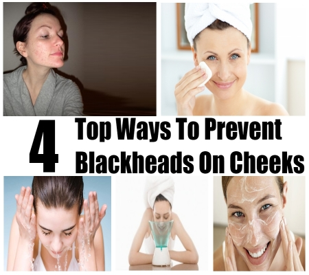 how to get rid of acne and blackheads on back