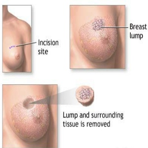 Side Effects Of An Excisional Breast Biopsy