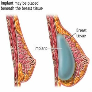 Side Effects Of Post Breast Augmentation
