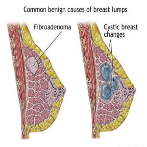 causes of breast lump