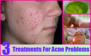 Treatments For Acne Problems