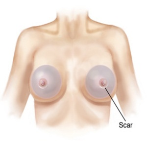 No Infection and Breast Scars