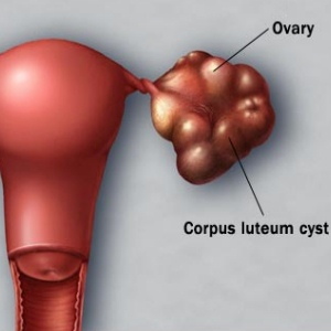 Causes Of Different Ovarian Cysts
