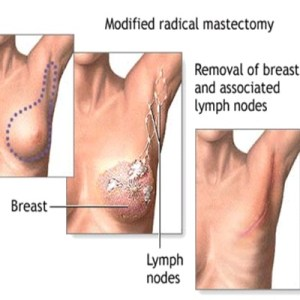 Successful Post Mastectomy Reconstruction