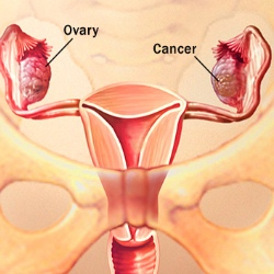 Tips To Recognize Early Ovarian Cancer Symptoms