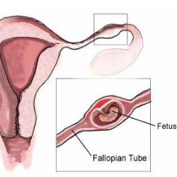 Ectopic Pregnancy Treatment Methods