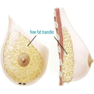 Advantages And Disadvantages Of Breast Implants With Fat