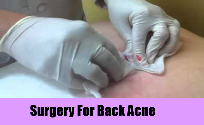 13 Treatment Options For Back Acne  Lady Care Health