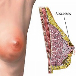 Causes And Symptoms Of Abscess On Breast