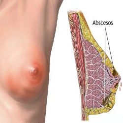 Treatment Options For Breast Infection
