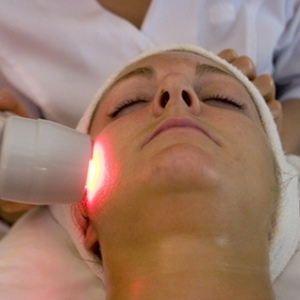 How To Remove Acne With The Help Of Laser