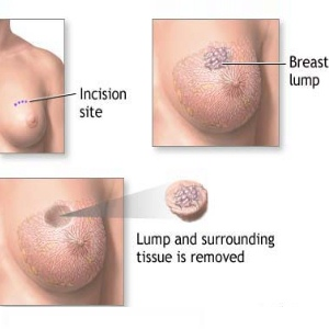 Symptoms And Complications Of Metastatic Breast Cancer