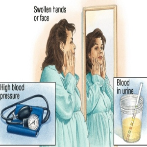 Risk Factors And Treatment Of Hypertension In Pregnancy