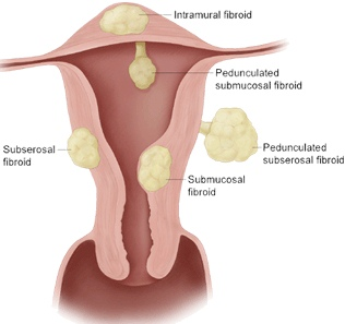 Top 6 Symptoms Of Uterine Fibroids