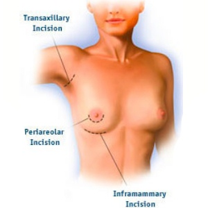 Procedure Of Breast Implant