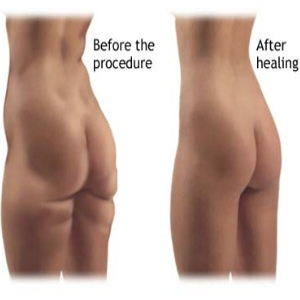 Procedure And Complications Of Liposuction Surgery - Risks