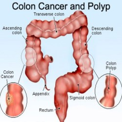 Four Prominent Symptoms Of Colorectal Cancer