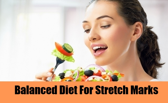 Balanced Diet For Stretch Marks