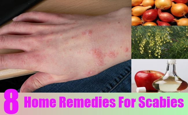 8 Home Remedies For Scabies Natural Treatments Amp Cure For Scabies Lady Care Health