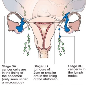 ovary cancer stage 3