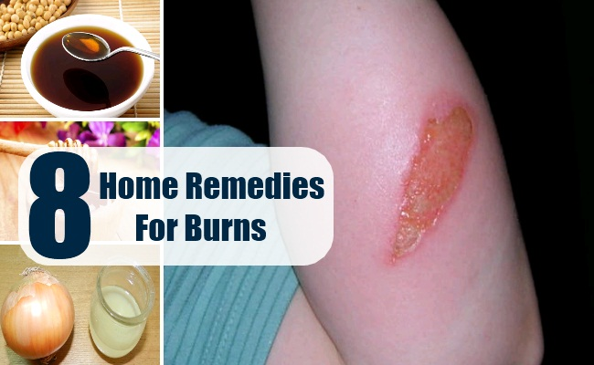 8 Home Remedies For Burns - Natural Treatments & Cure For
