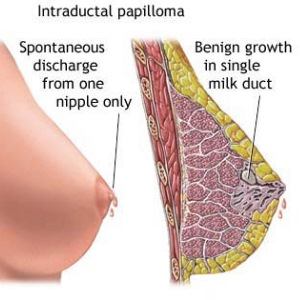 Intraductal Papillomas
