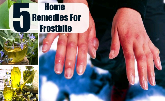 5 home remedies for frostbite natural cure herbal treatment frostbites vary in the severity from mild frost nips to severe frostbites the happen to people living in or visiting extremely cold regions like mountain fandeluxe Ebook collections