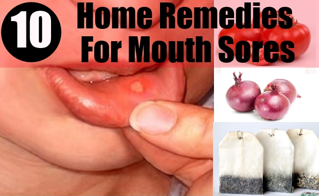 Home Remedies For Mouth Sores