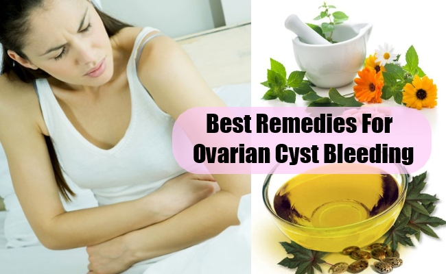 Best Remedies For Ovarian Cyst Bleeding