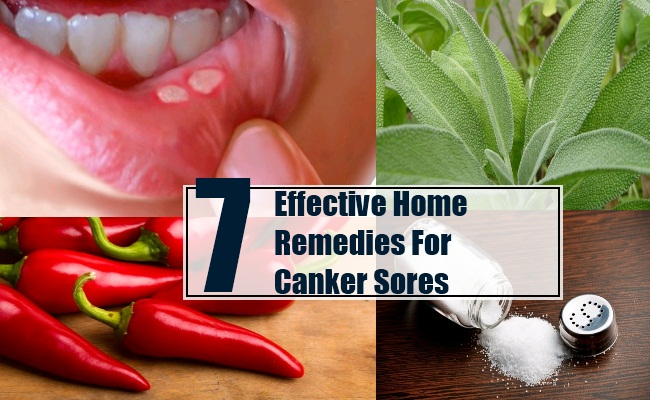 7 Effective Home Remedies For Canker Sores - Treatments And