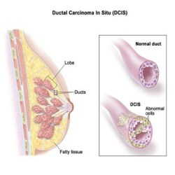 Ductal Breast Cancer
